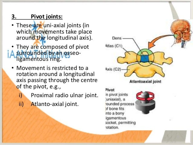 what joint is a good example of a pivot joint